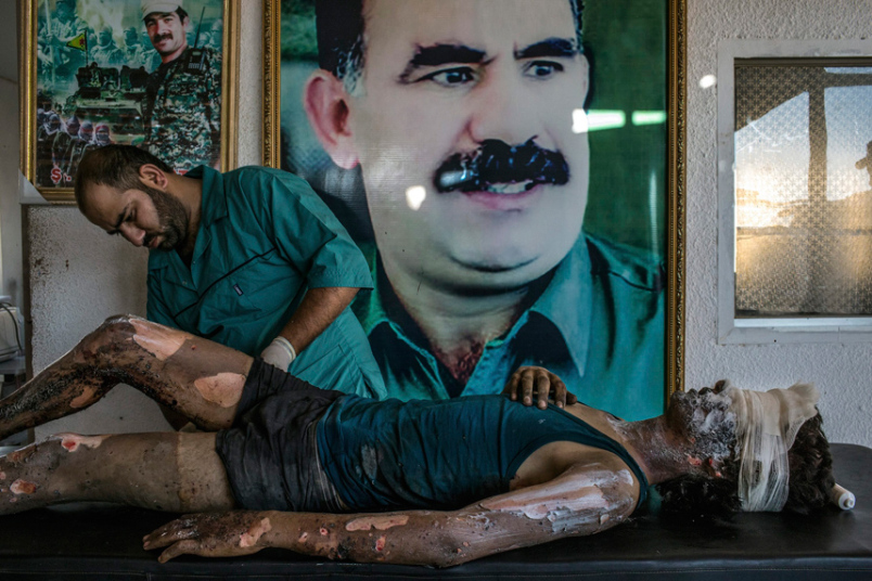 5. Категория «Главные новости. Одиночная фотография». Врач обрабатывает ожоги 16-летнего бойца Исламского государства. Фото: Маурисио Лима,
