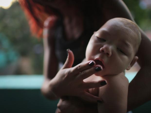 7. Estafany Perreira держит своего пятимесячного племянника, страдающего микроцефалией. В Бразилии уже зафиксированы 4000 случаев этого врожденного дефекта. ВОЗ связывает их с вирусом.
