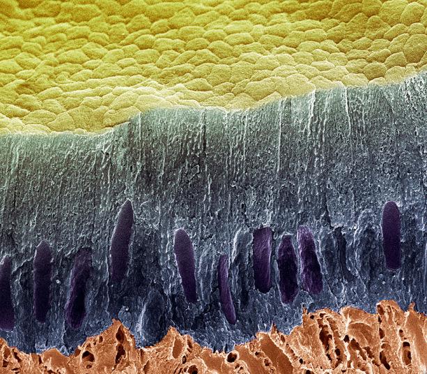 4. Сечение зуба на котором показан слой эмали (синий) и дентин (красный). Повреждение эмали открывает дентинные канальцы – пористое вещество дентина.