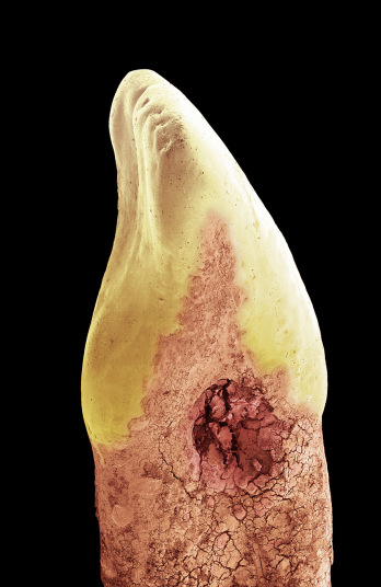 6. Поврежденный разрушающийся резец.