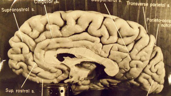 16. Мозг Эйнштейна был извлечен почти сразу после смерти ученого.