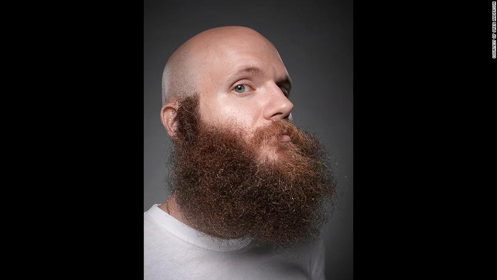 9. Если отсутствуют волосы на голове, почему же они должны отсутствовать на лице?