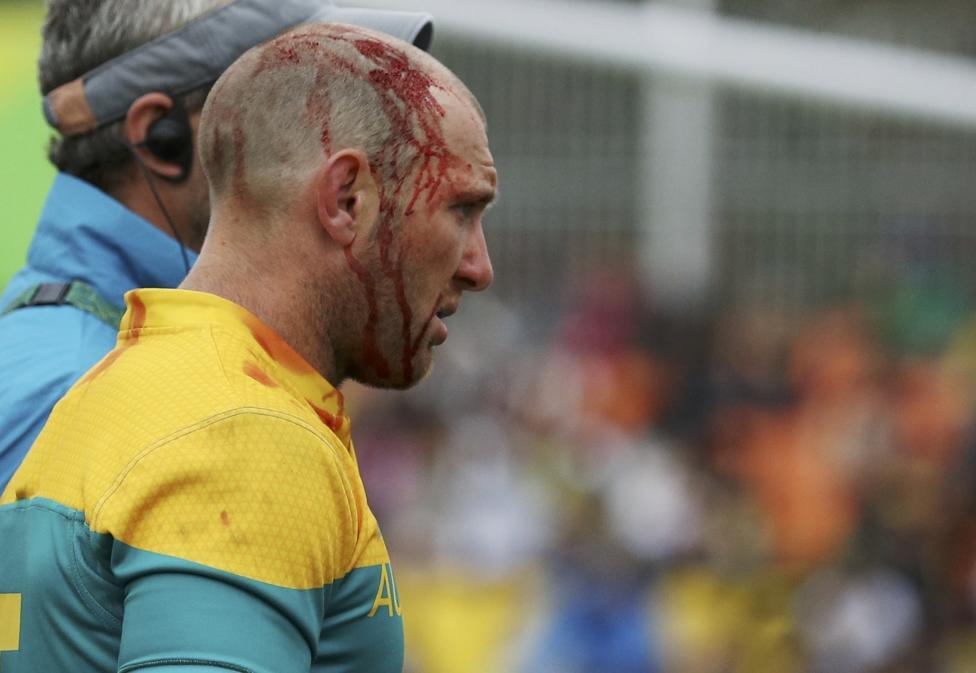 6. Австралиец Джеймс Станнард уходит с поля после получения травмы головы в предварительном этапе по мужскому регби.