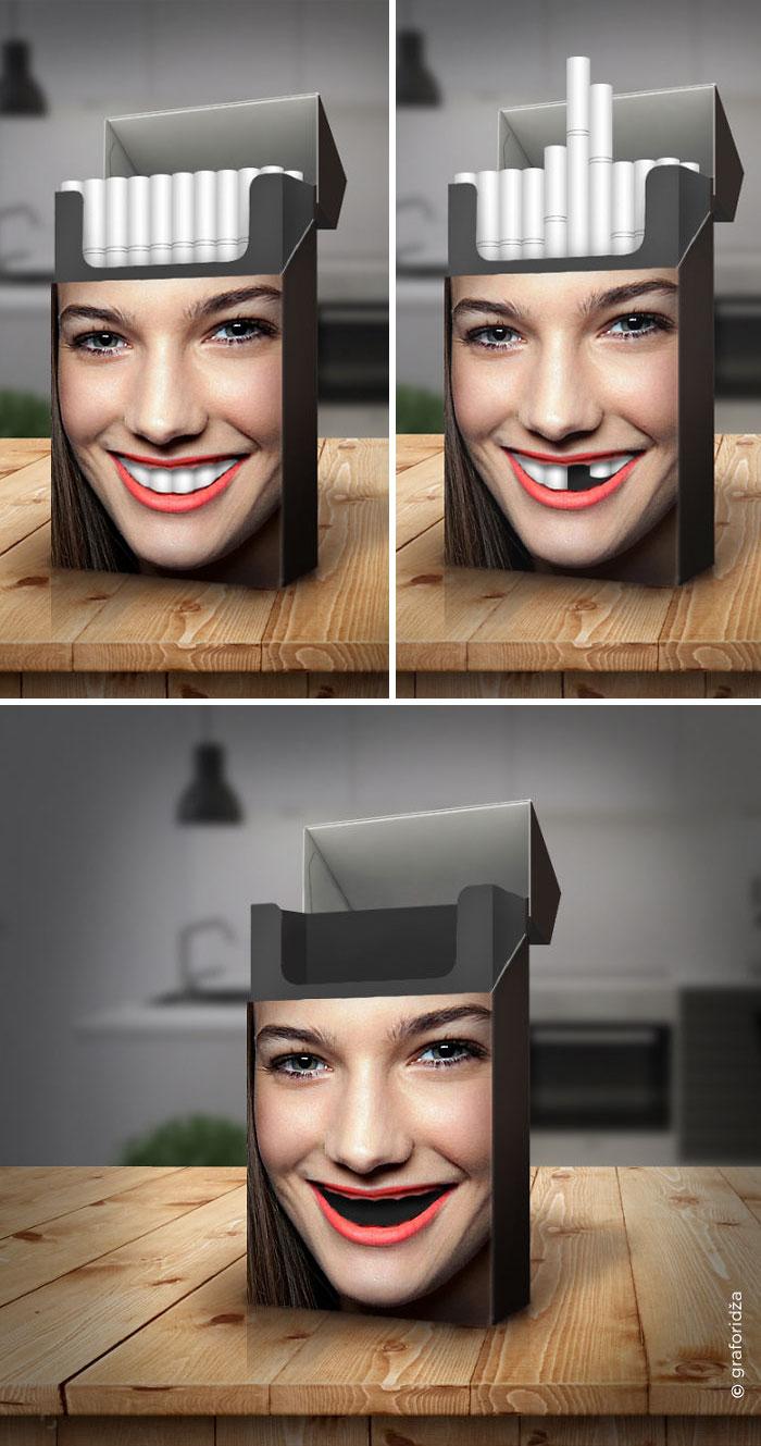 2. Зубы курильщика.