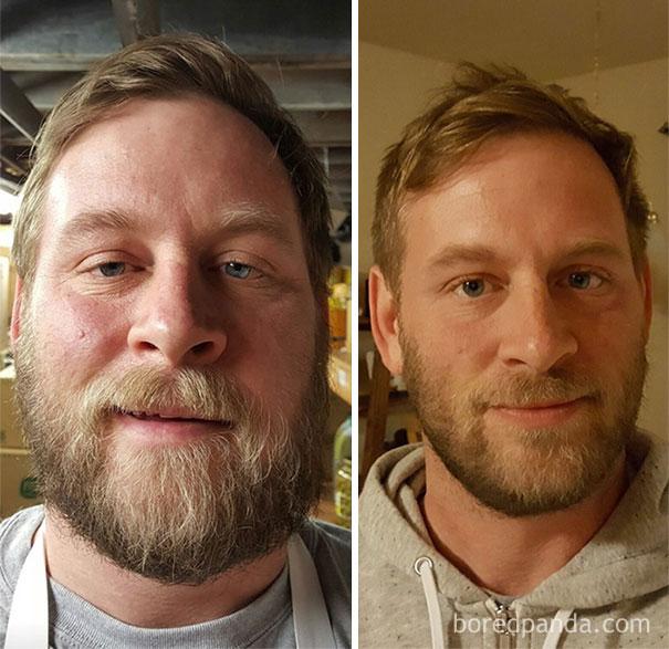 Алкоголики. Фото до и после того, как человек бросил пить ...