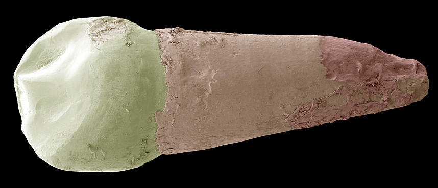 3. Молочный зуб. Большая часть человеческого зуба состоит из дентина, твердого вещества, обволакивающего пульпу, внутри которой находятся кровеносные сосуды и нервы, которые можно увидеть только, распилив зуб или сделав ортопантомограмм (рентгенологическое исследование зуба). Коронка зуба покрыта эмалью (белая часть зуба на фото). Эмаль защищает дентин от кислот, находящихся в полости рта. Дентин в корне зуба защищен цементом корня.