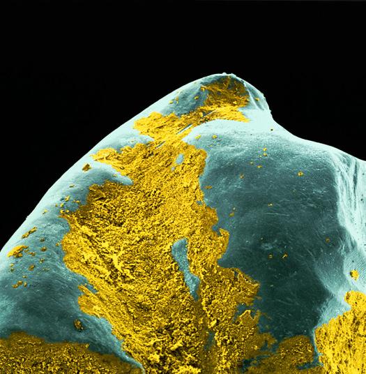 5. Бактериальный желтый налет на поверхности зуба. Кислота, которая образуется в результате отложения продуктов жизнедеятельности бактерий на поверхности зуба, может повреждать эмаль и вызывать кариес.