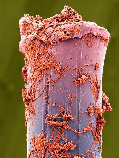 9. Щетинка зубной щетки покрытая зубным налетом. После каждой чистки зубов необходимо тщательно промывать щетку, чтобы удалить налет и частички зубной пасты. Сушить щетку рекомендуется в вертикальном положении. Закрытие головки щетки специальным колпачком способствует накоплению влаги и росту микроорганизмов.