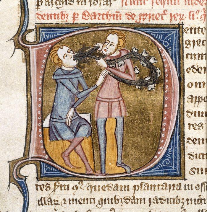 1. Удаление зуба в 14-м веке. Как правило использовались серебряные щипцы, на которых висело ожерелье из вырванных зубов.