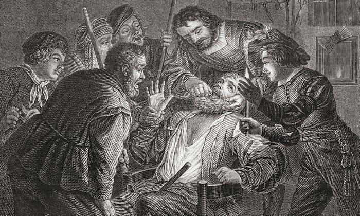 2. Лечение зубов в 17-м веке в Голландии.