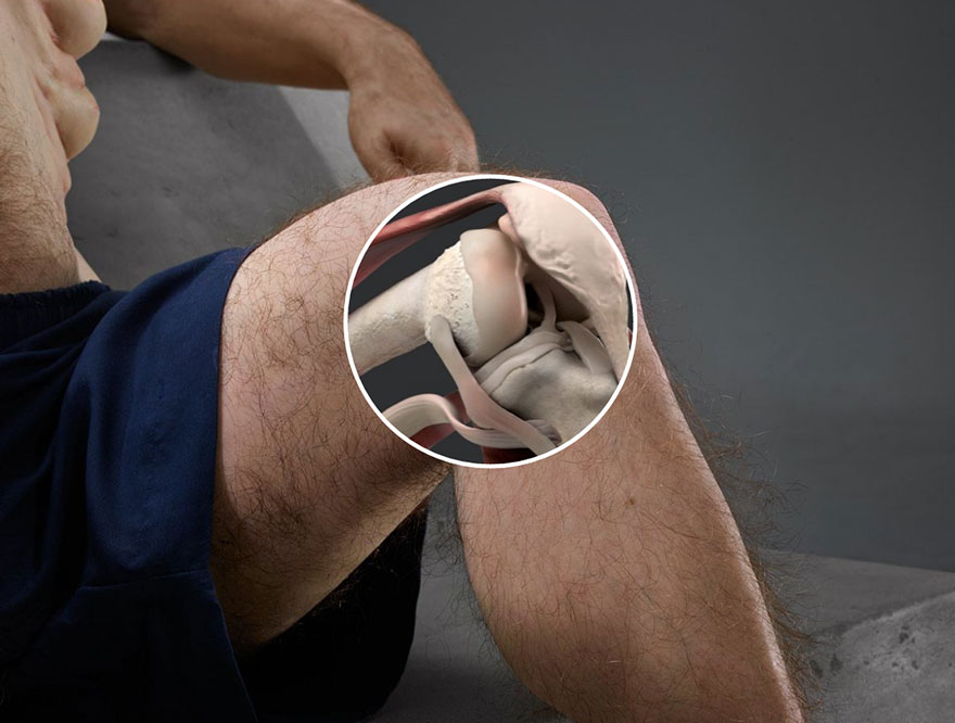 10. Колени Грэма могут двигаться во всех направлениях, уменьшая тем самым шанс получить травму.