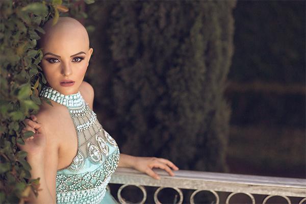 10. Андреа надеется, что эта фотосессия вдохновит молодых девушек страдающих раком не беспокоиться о своей внешности в этот трудный период.