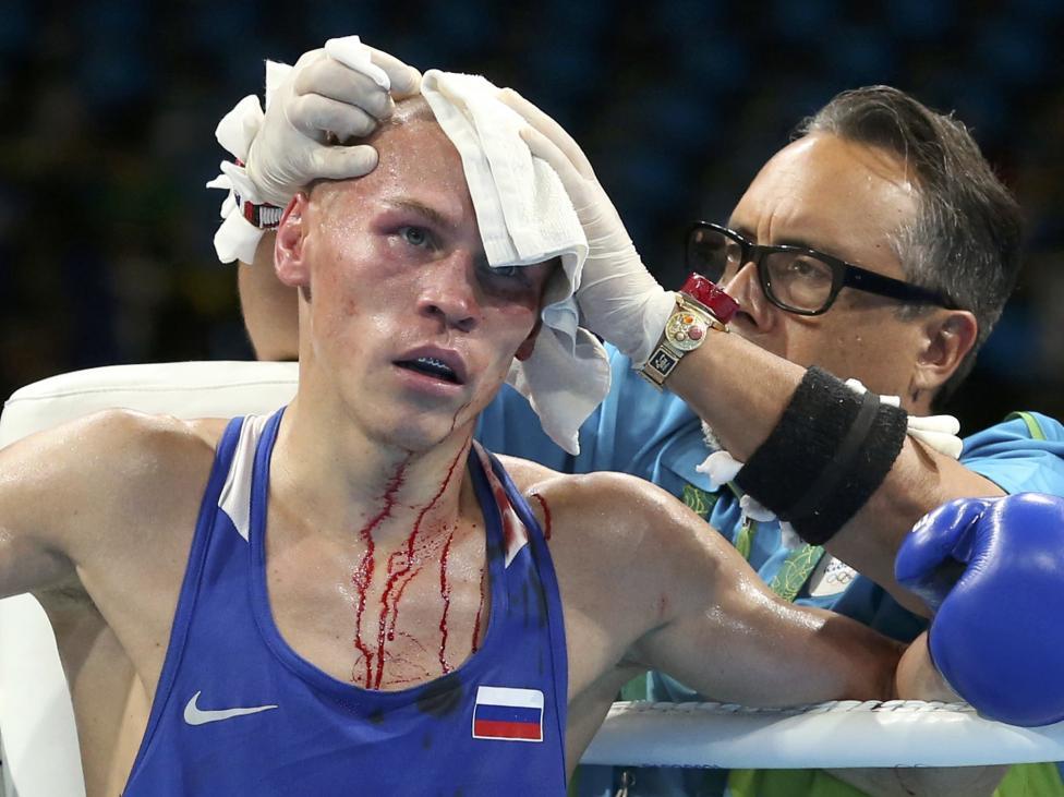9. Российский боксер Владимир Никитин получил рассечение.