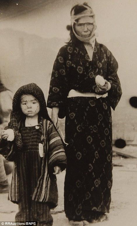 9. Выжившие в Нагасаки.