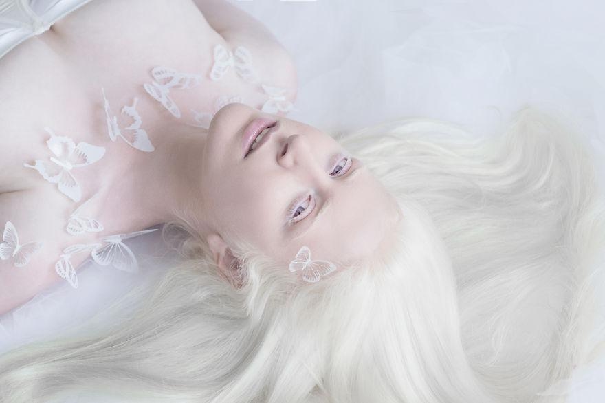1. Фотограф Юлия Тайц загорелась идеей создания серии фотографий людей с альбинизмом или людей альбиносов.