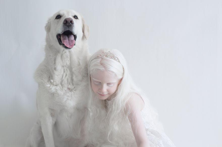 2. Альбинизмом называют врождённое отсутствие пигмента меланина, который придает окраску коже, волосам, радужной и пигментной оболочкам глаза.