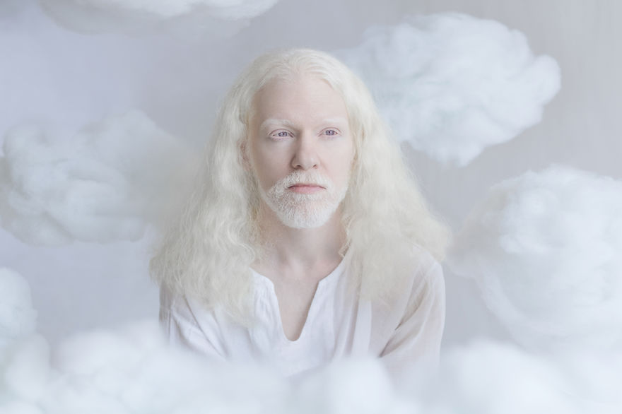 3. Юлия заявляет, что уникальная красота альбиносов буквально загипнотизировала ее.