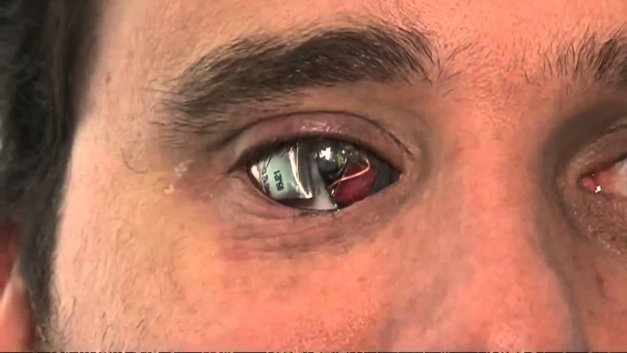 24. Бионический глаз.